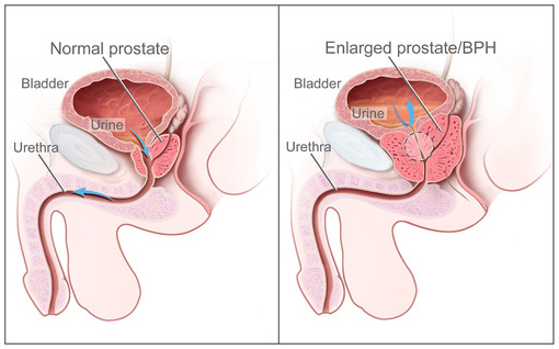 Middle Lobe Prostate http://identitymetrics.com/img/prostate-median-lobe